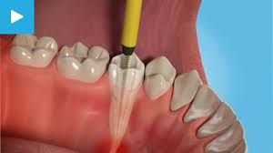 Root canal treatment in Patel Nagar