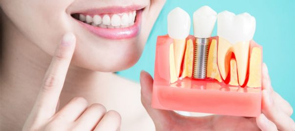 Dental Implant in Delhi