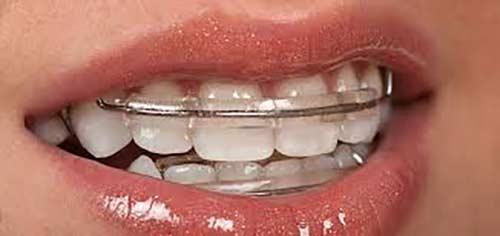 dentist in Paschim Vihar Delhi