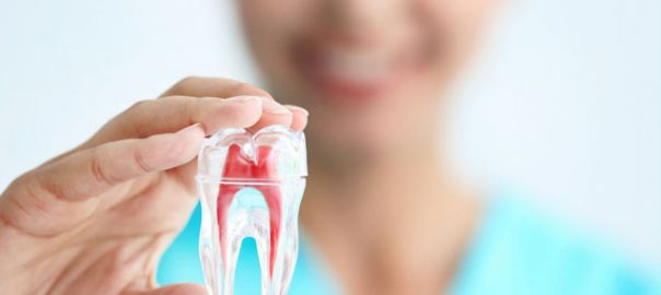 Root Canal Treatment in Patel Nagar Delhi